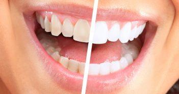 gele-witte-tanden